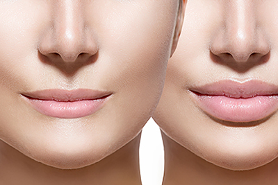 LIPS ENHANCEMENT/MODELLING